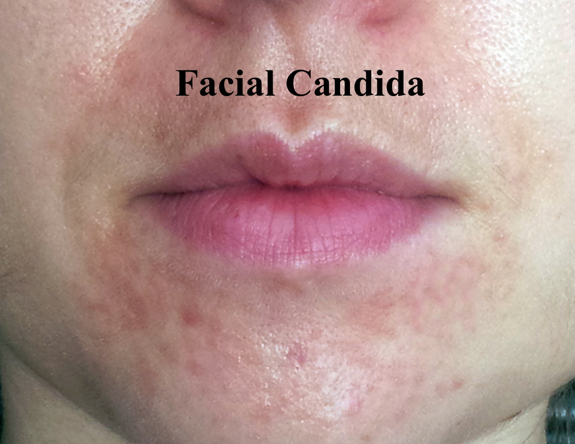 Facial fungal infection
